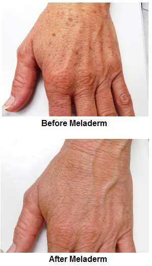 before and after using Meladerm on liver spots