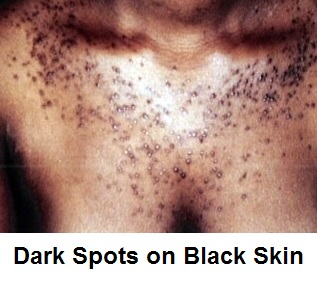 Dark Spots On Black Skin