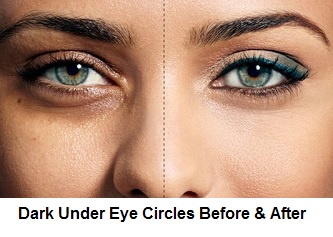 Dark Under Eye Circles Before And After